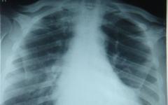 Российских туристов в Великобритании проверят на туберкулез